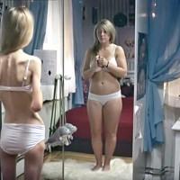 Vidéo: Anorexie